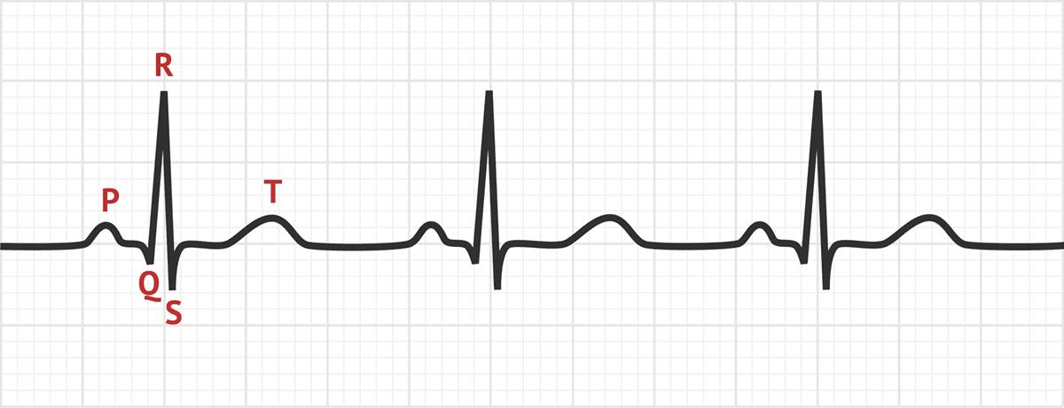 sinus rhythm    ecg interpretation