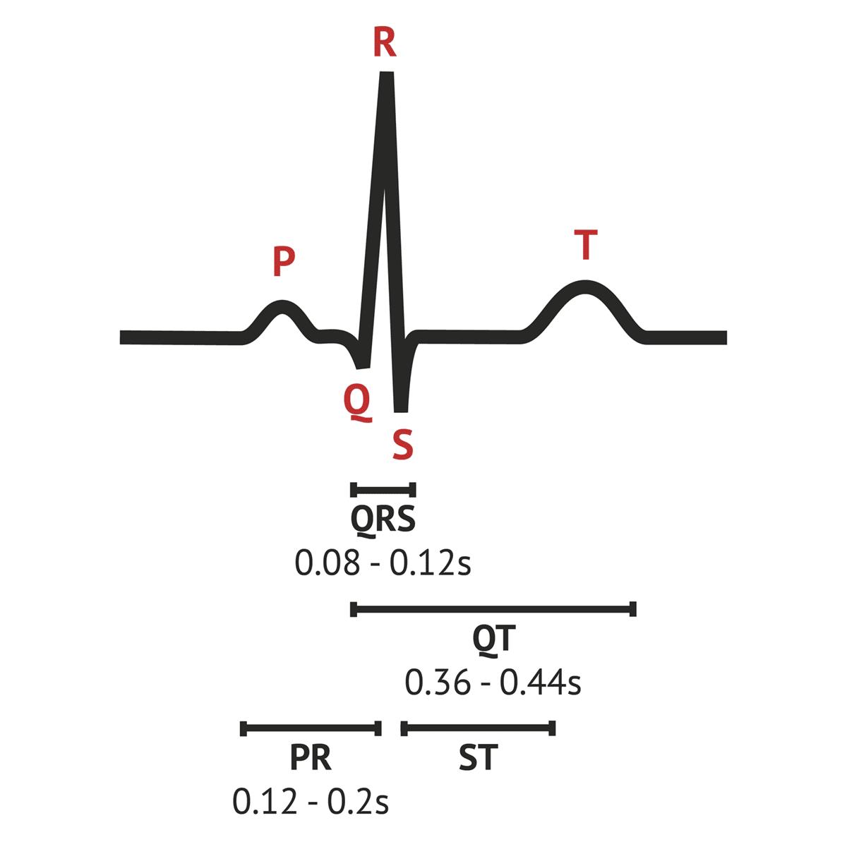 The Normal Ecg Trace Interpretation Medschool Electrocardiogram Diagram Electrocar Diogram