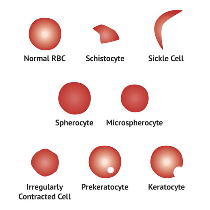 Blood Film Interpretation